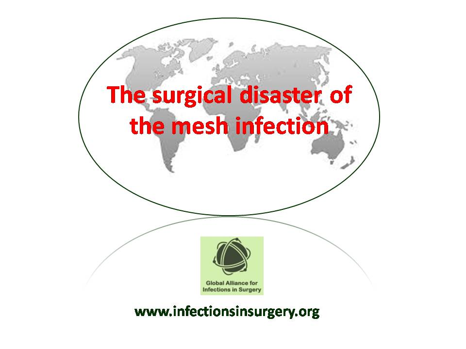 The surgical disaster of the mesh infection – Global
