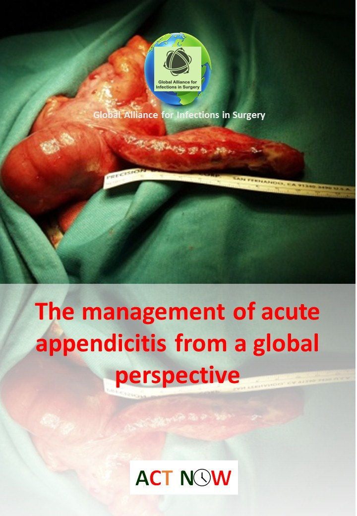 The management of acute appendicitis from a global perspective